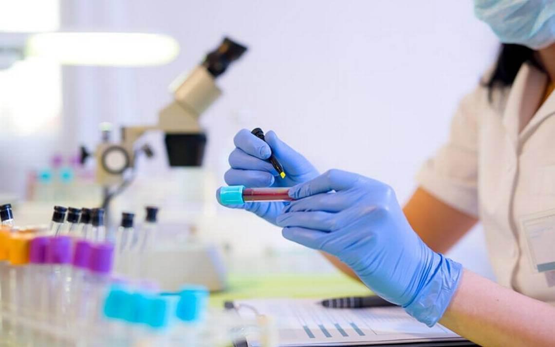 Где слать анализ крови на все в ростове анализ крови при периодонтите